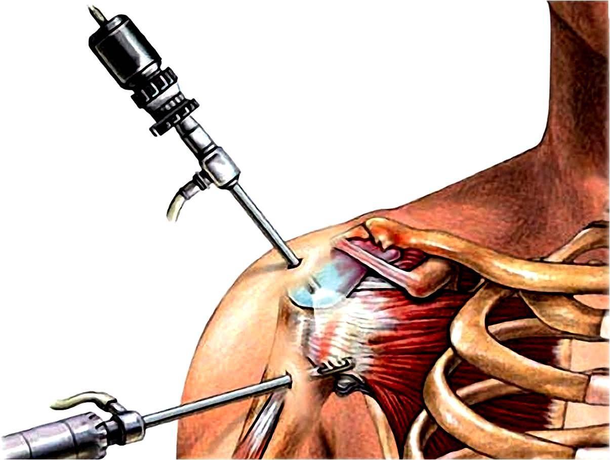 Artroscopia Hombro: Acromioplastia